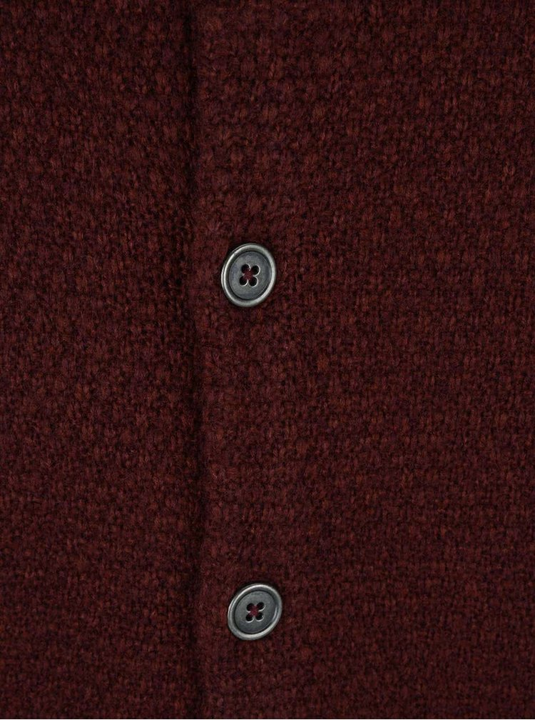 Cardigan visiniu ONLY & SONS Cadoc